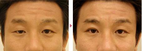 35歳(男性)先天性眼瞼下垂・右目の埋没式挙筋短縮術の症例写真