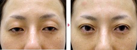 48歳(女性)ハードコンタクト性眼瞼下垂の症例写真