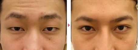 20歳(男性)眼瞼下垂の症例写真