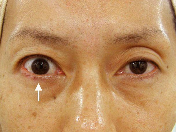 No.20 38歳 切らない眼瞼下垂 術中の症例写真