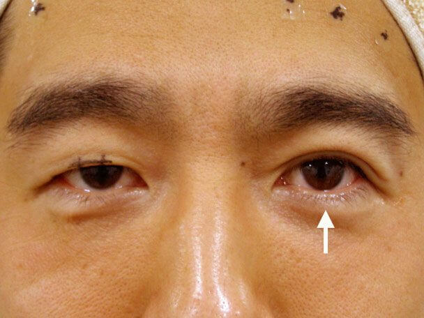 No.38 男性 切らない眼瞼下垂 術中の症例写真