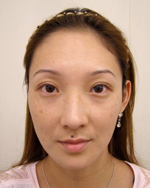 No.113 埋没式挙筋短縮 顔全体 術後1ヶ月