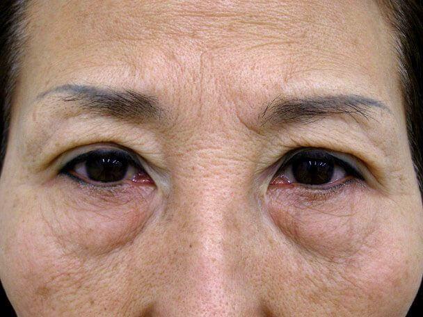 No.100 切らない眼瞼下垂(たるみ・くぼみ・たくし上げ) 術直後の症例写真