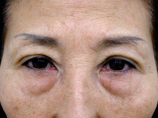 No.100 切らない眼瞼下垂(たるみ・くぼみ・たくし上げ) 術後30分の症例写真