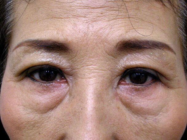 No.100 切らない眼瞼下垂(たるみ・くぼみ・たくし上げ) 術後1週間の症例写真