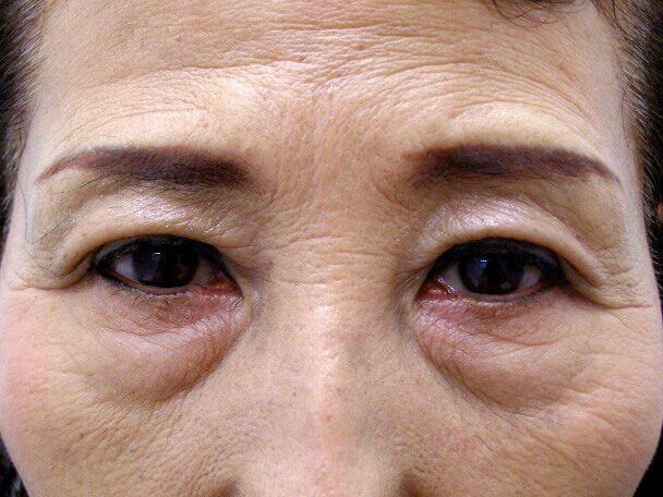 No.100 切らない眼瞼下垂(たるみ・くぼみ・たくし上げ) 術後1ヶ月の症例写真