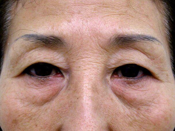 No.100 切らない眼瞼下垂(たるみ・くぼみ・たくし上げ) 術前 症例写真