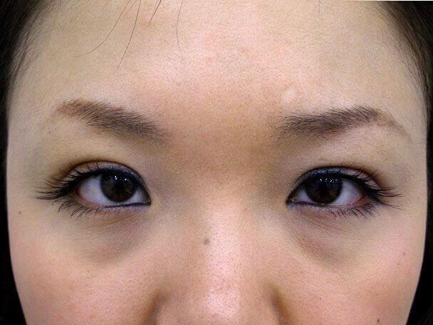No.101 二重埋没法(末広型・下垂修正) 術後3日(メイクあり)の症例写真