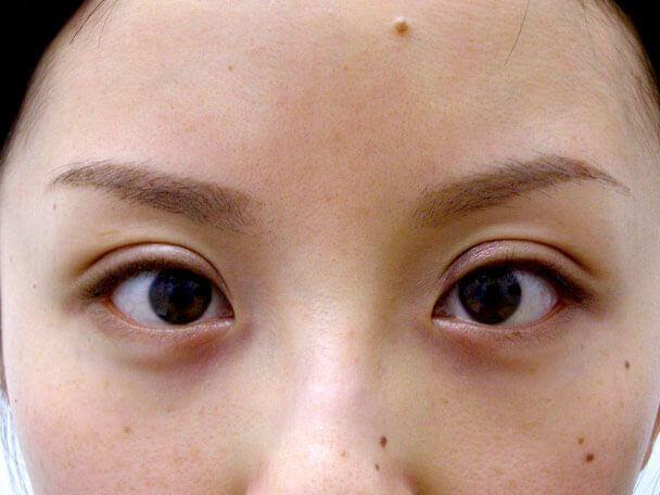 No.103 切らない眼瞼下垂 術後4日(メイクあり)の症例写真