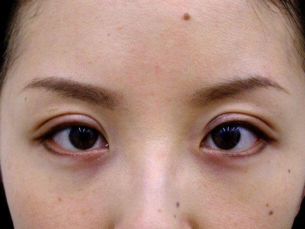No.103 切らない眼瞼下垂 術後1週間の症例写真