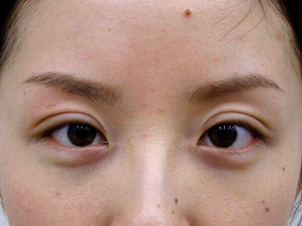 No.103 切らない眼瞼下垂 術後1ヶ月の症例写真