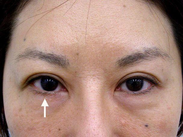 No.104 切らない眼瞼下垂(右目のみ)術後3日(メイクあり)症例写真