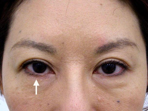 No.104 49歳 切らない眼瞼下垂(右目のみ)術後1週間(メイクあり)症例写真