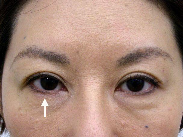 No.104 切らない眼瞼下垂 術後1ヶ月(メイクあり)症例写真