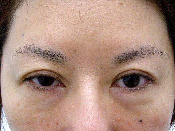 No.104 49歳切らない眼瞼下垂 術前の症例写真