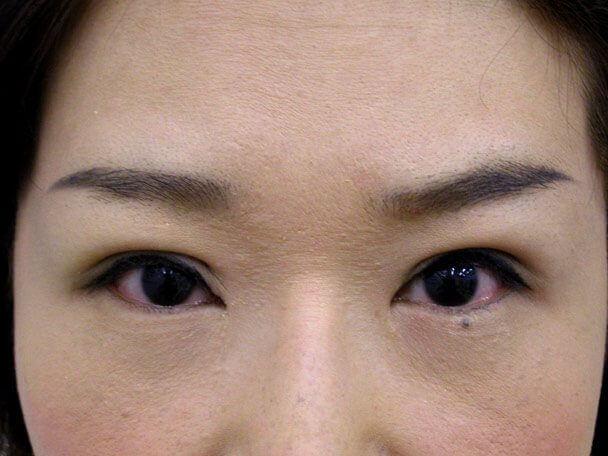 No.107 41歳 切らない眼瞼下垂 術後4日の症例写真
