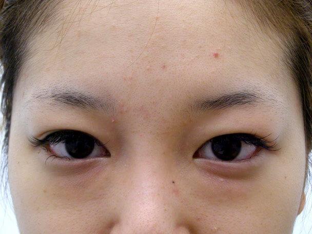 No.108 二重埋没法(幅広末広型) 術前 症例写真