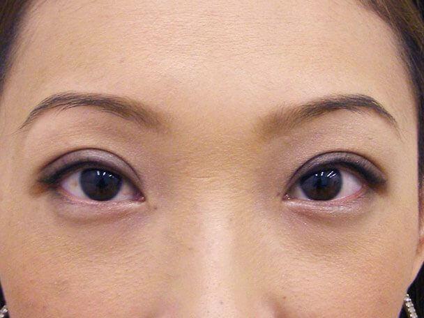 No.113 28歳切らない眼瞼下垂 術後3日(メイクあり)の症例写真