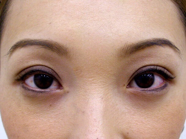No.113 28歳 切らない眼瞼下垂 術後1週間(メイクあり)の症例写真