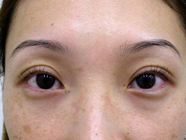 No.113 28歳 切らない眼瞼下垂 術後1ヶ月の症例写真