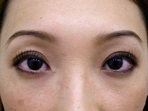 No.113 28歳 切らない眼瞼下垂 術後1ヶ月(メイクあり)の症例写真