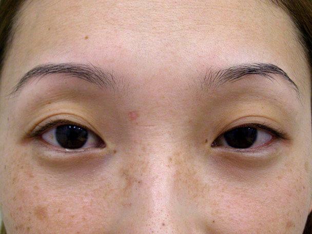 No.113 28歳 切らない眼瞼下垂 術前の症例写真