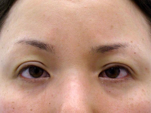 No.117 34歳 切らない眼瞼下垂 術直後の症例写真
