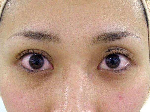 No.118 25歳二重埋没法(幅広平行型・下垂修正)術中の症例写真