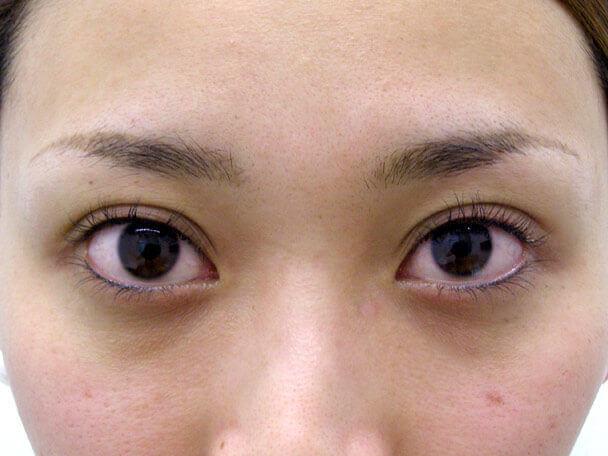 No.118 25歳二重埋没法(幅広平行型・下垂修正)術直後の症例写真