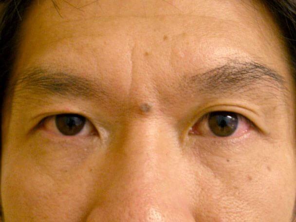 No.120 43歳 男性(右目のみ)二重埋没法(下垂修正)術前 症例写真