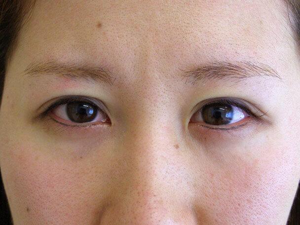 No.121 24歳 二重埋没法(下垂修正) 術直後の症例写真