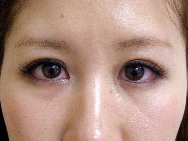 No.121 24歳 二重埋没法(下垂修正) 術後2週間(メイクあり)の症例写真