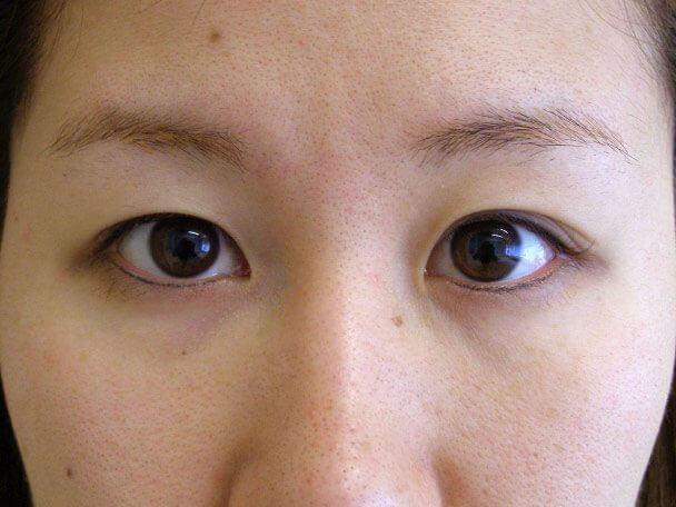No.121 24歳 二重埋没法(下垂修正) 術前の症例写真