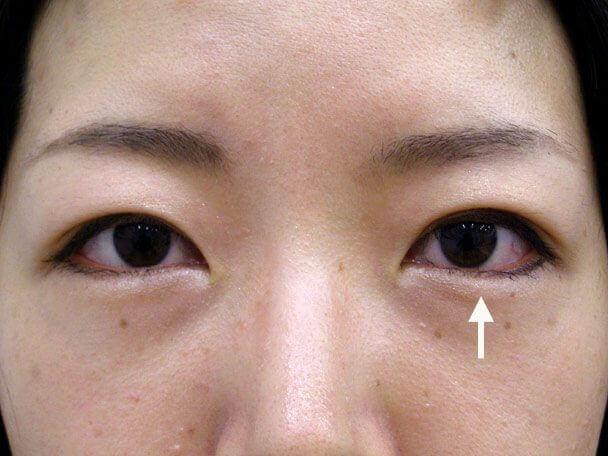 No.123 29歳 二重埋没法(幅狭末広型・左目)術後3日の症例写真