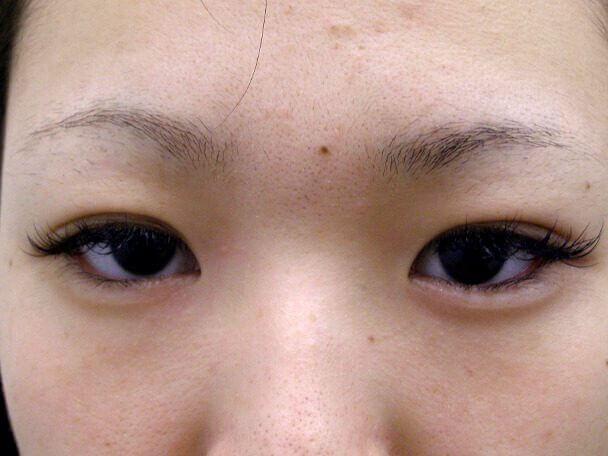 No.125 19歳二重埋没法(末広型)術後1ヶ月(メイクあり)の症例写真