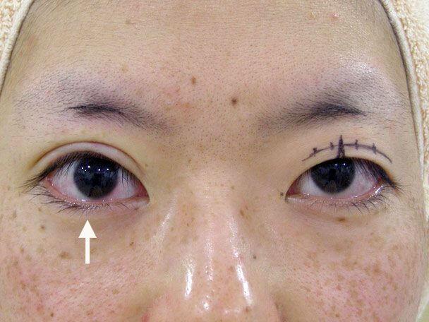 No.126 25歳 切らない眼瞼下垂 術中の症例写真