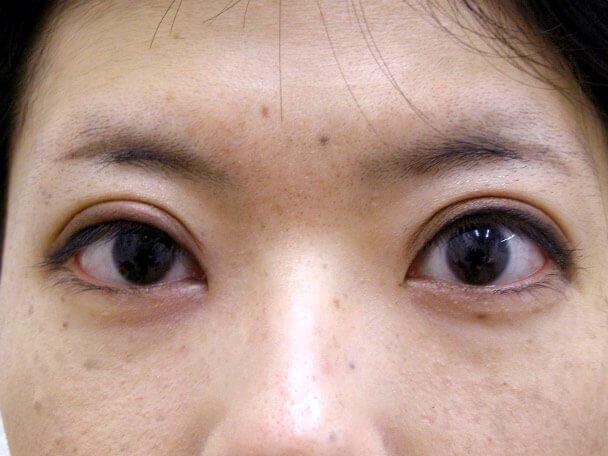 No126 25歳 真崎式二重 術後4日(メイクあり)の症例写真