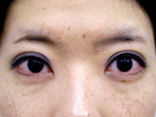 No126 25歳 真崎式二重 術後1ヶ月(メイクあり)の症例写真