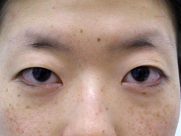 No.126 25歳 真崎式二重 術前 症例写真