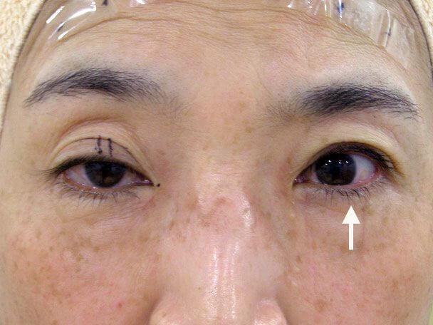 No.127 50歳切らない眼瞼下垂 術中の症例写真