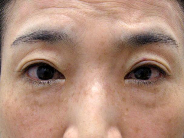 No127 50歳切らない眼瞼下垂 術直後の症例写真