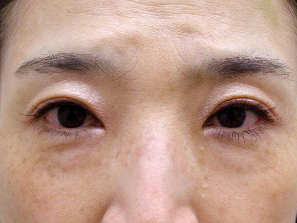 No127 50歳切らない眼瞼下垂 術後4日(メイクあり)の症例写真