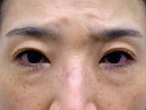 No127 50歳切らない眼瞼下垂 術後7日(メイクあり)の症例写真