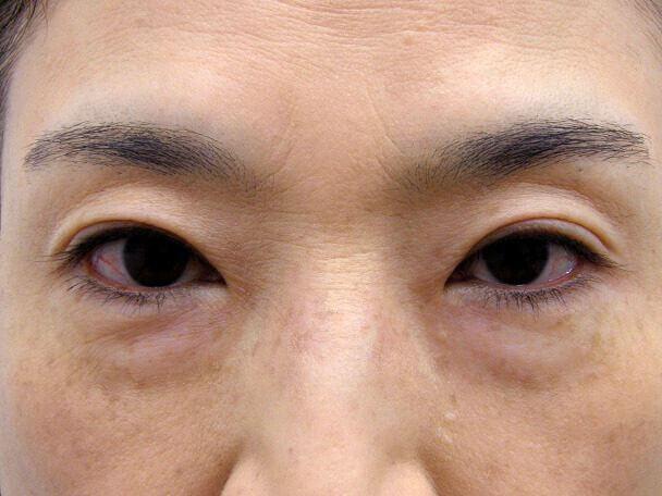 No127 50歳切らない眼瞼下垂 術後1ヶ月の症例写真