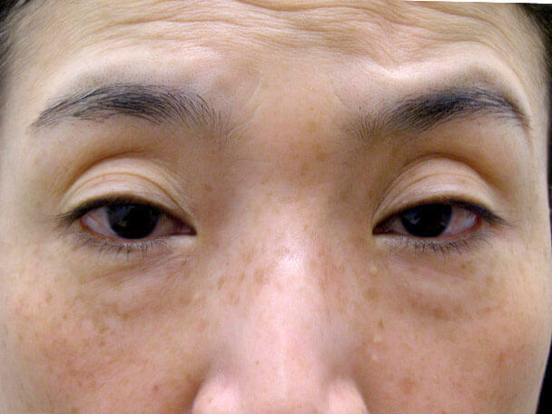 No127 50歳切らない眼瞼下垂 術前 症例写真