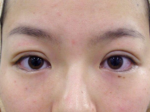 No132 二重埋没(幅広二重・皮膚・脂肪厚い)術直後の症例写真