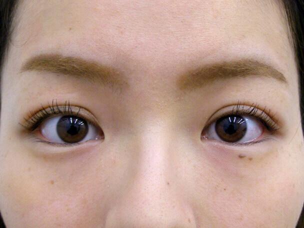 No132 二重埋没(幅広二重・皮膚・脂肪厚い)術後1ヶ月(メイクあり)の症例写真