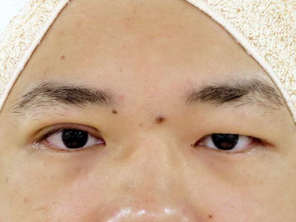 No133 男性 二重埋没法(幅狭二重・末広型・皮膚・脂肪厚い) 術中の症例写真