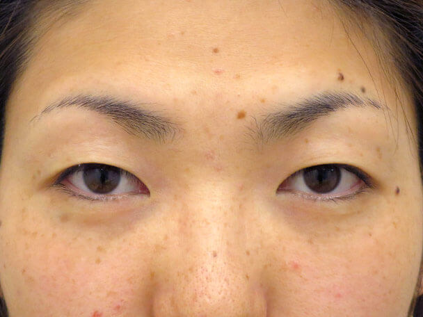 No134 30歳 二重埋没法(奥二重・末広型)術前 症例写真