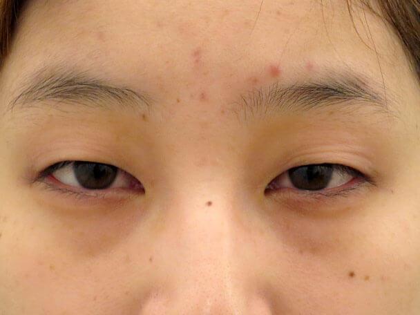 No.135 20歳 二重埋没法(末広型) 術前 症例写真